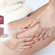 Prévenir la cellulite et la réduire naturellement
